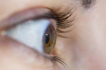 Пересадка роговицы глаза в Израиле
