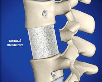 Лечение сужения позвоночного канала в Израиле - спинальный имплант