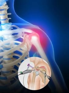 Артроскопия плечевого сустава в Израиле