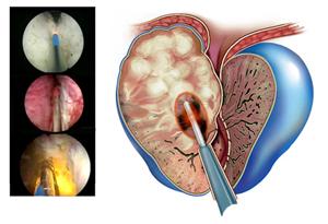 Современное лечение предстательной железы с помощью тулиевого лазера